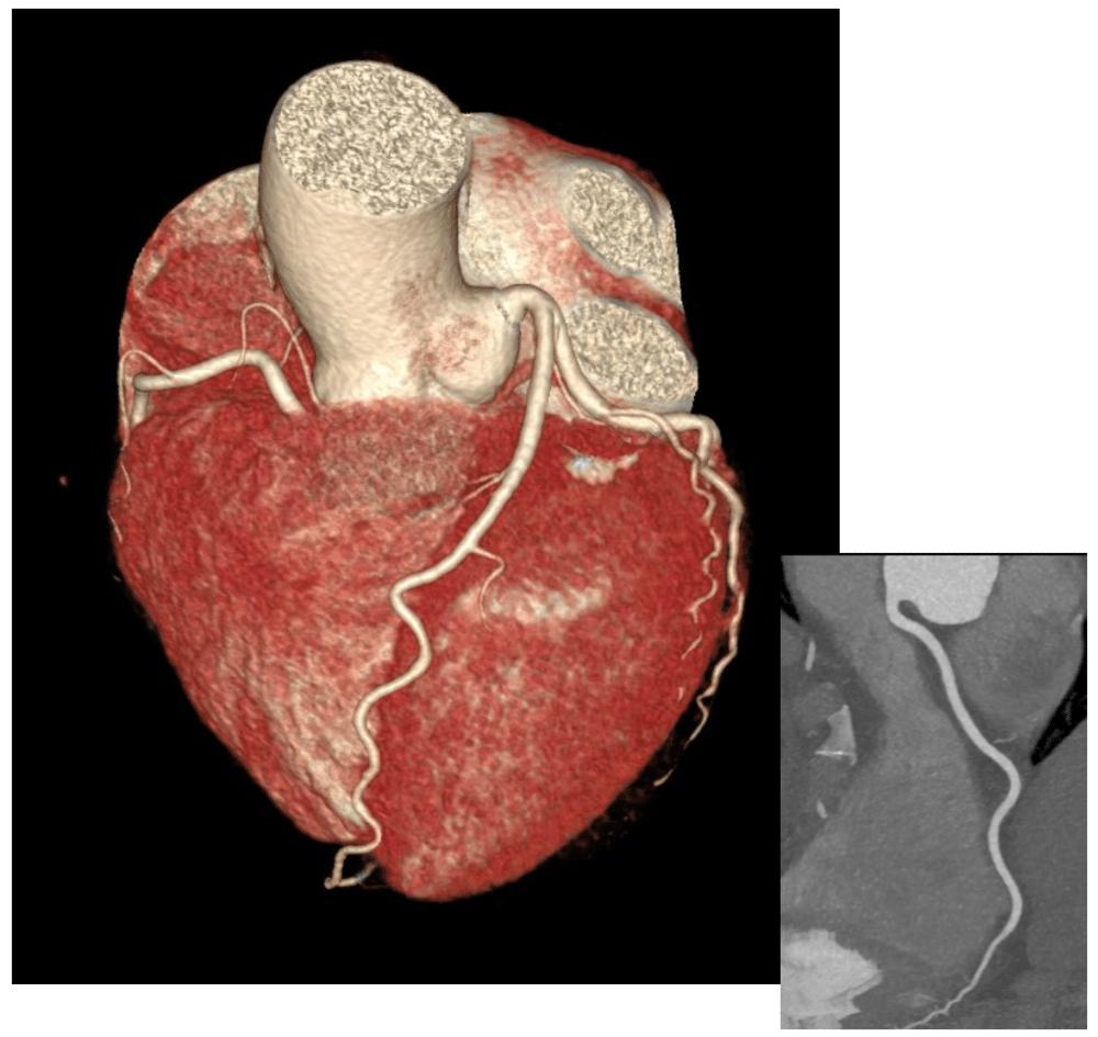 csm_Kardio-CT_gesunde_Herzkranzgefaesse